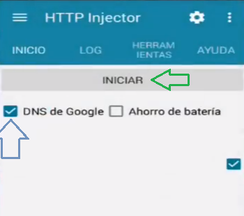 server tigo sv 2017 http injector android